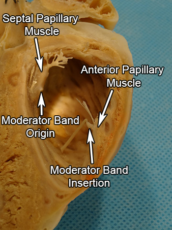 Comparative Anatomy Tutorial Ventricles