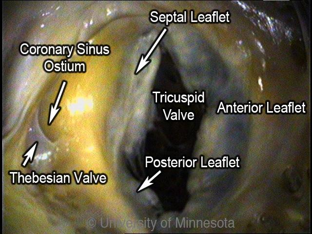 Comparative Anatomy Tutorial - Valves
