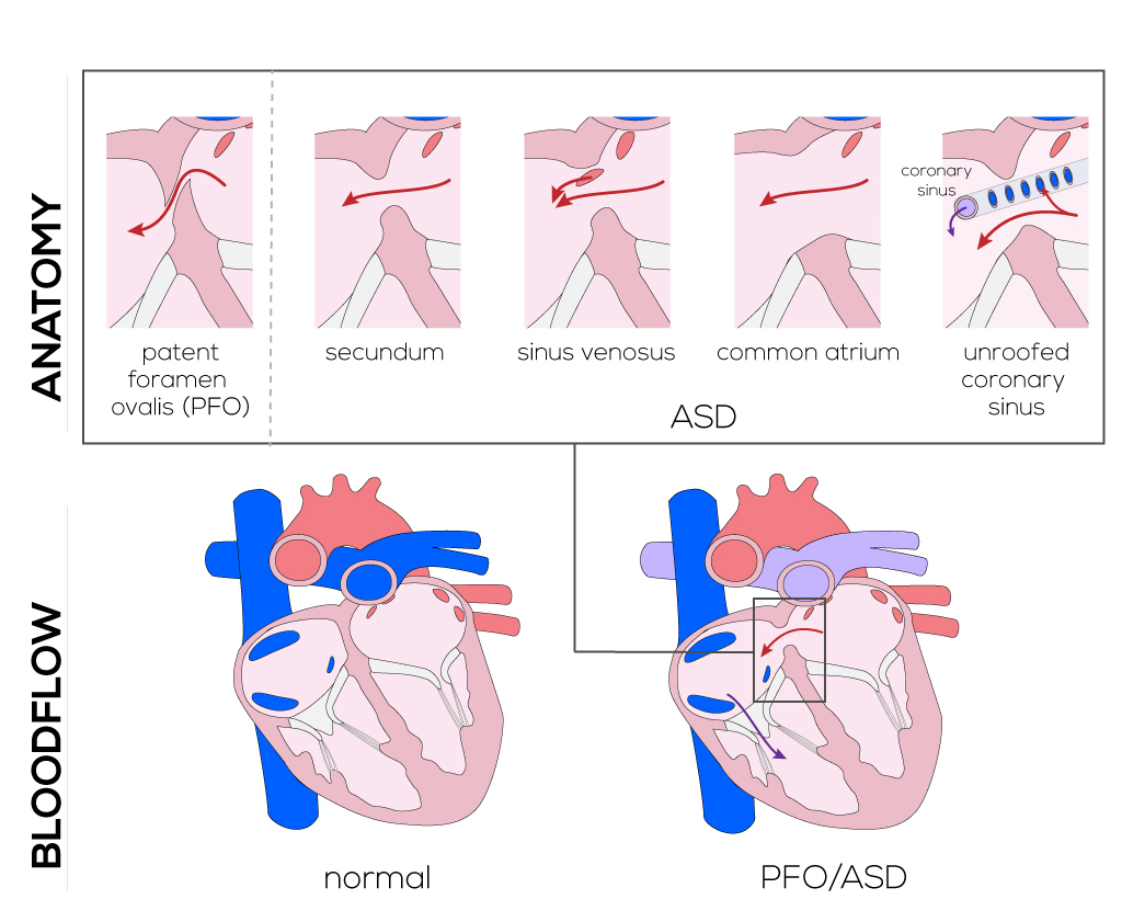 Not adult atrial defect septal