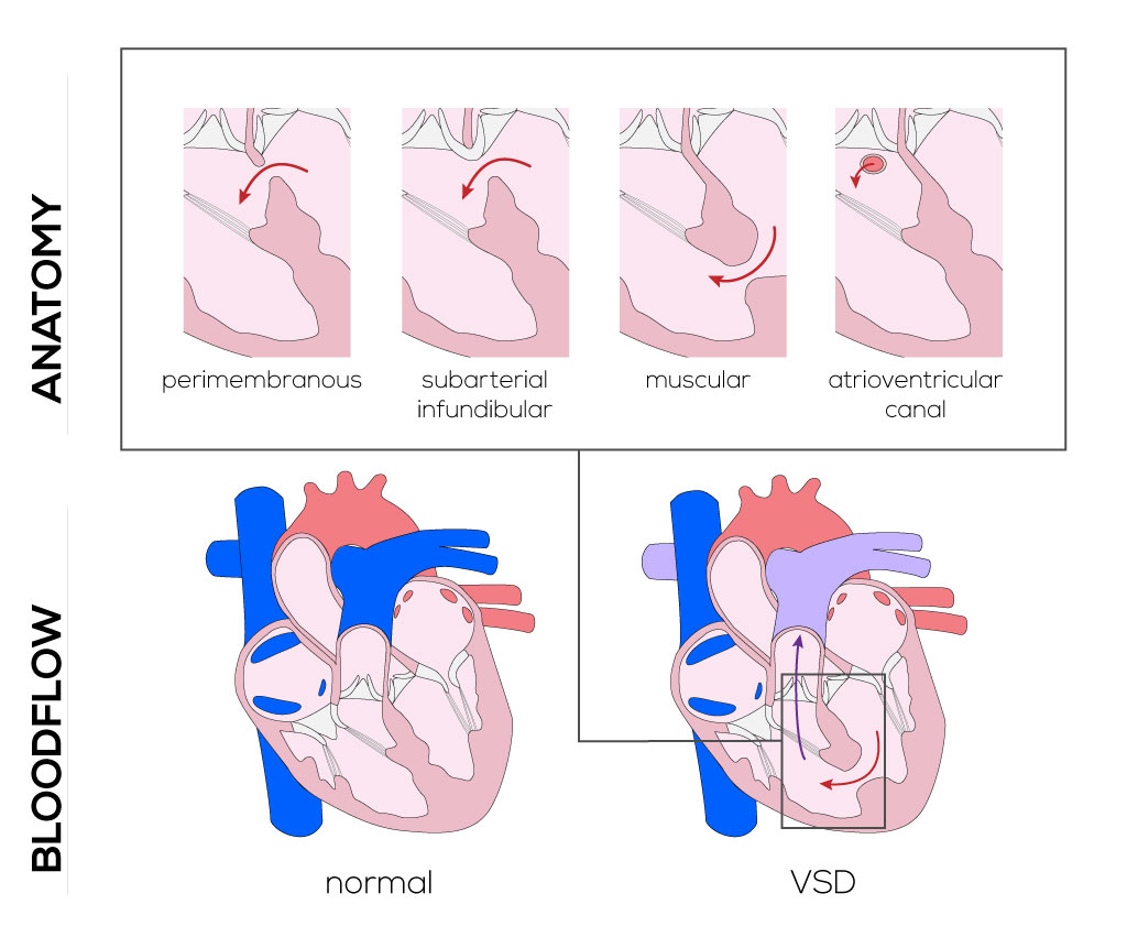 Ventricular septal defect types