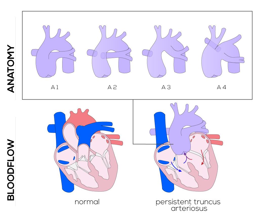 Congenital Defects Tutorial - Congenital Heart Defects | Atlas of ...