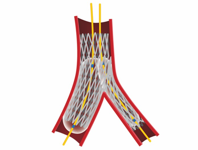 Device Tutorial Stents