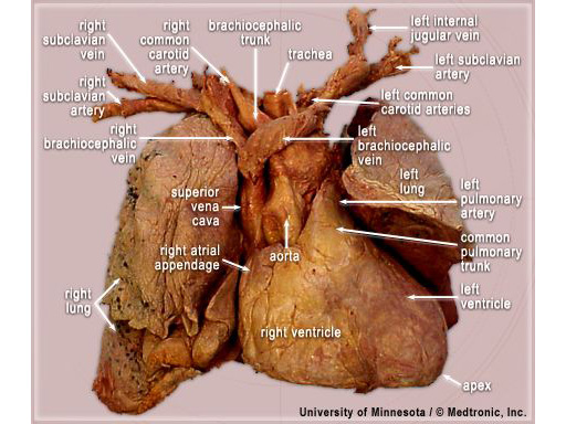 External Imaging | Atlas of Human Cardiac Anatomy