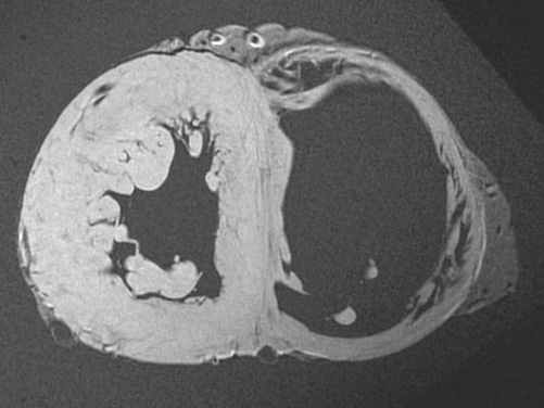 Static MRI - Short Axis Ventricle View | Atlas of Human